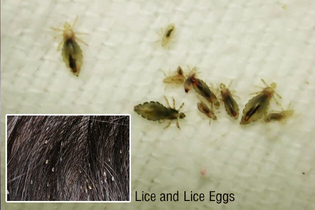 Strange Home Remedies to Remove Head Lice!