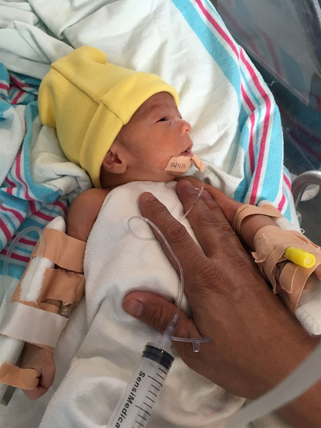 A Christmas Miracle for Baby Shamir Born with Incomplete Esophagus