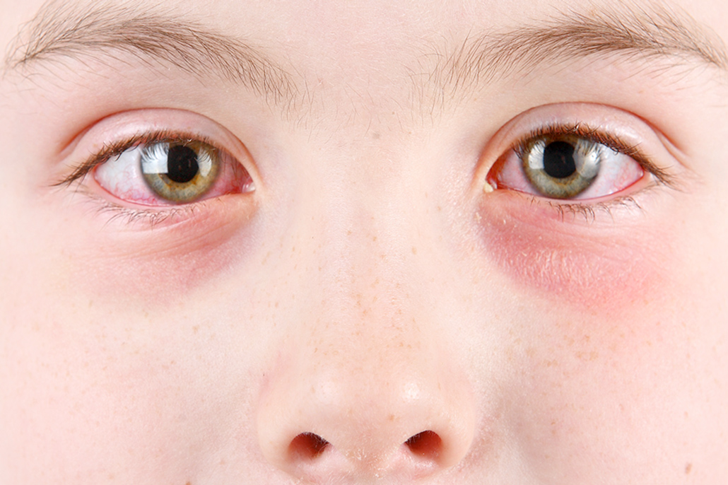 Ministry of Health Responds to Increased Reports of Conjunctivitis (Pink Eye)