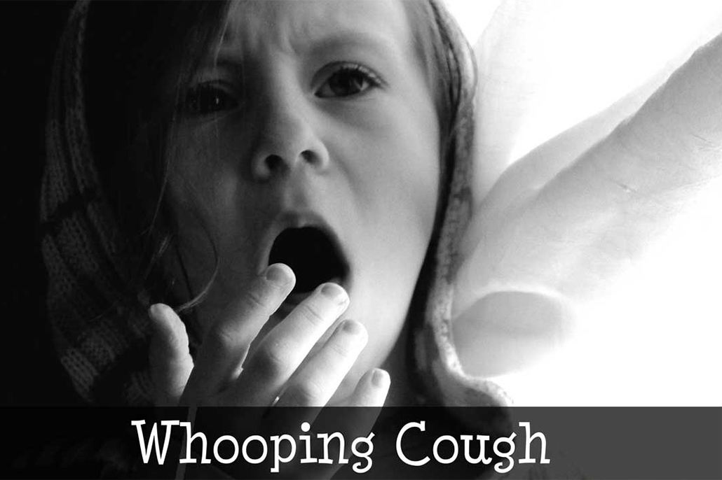 Ministry of Health Monitoring Confirmed Case of Whooping Cough