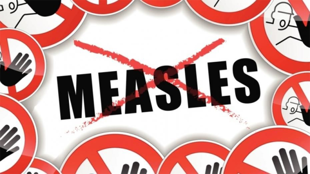 No Measles in Belize as compared To The Region