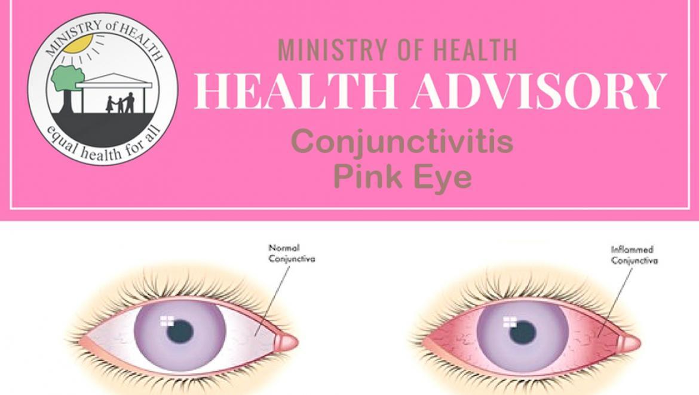 Pink Eye Outbreak in Belize is Pretty Bad